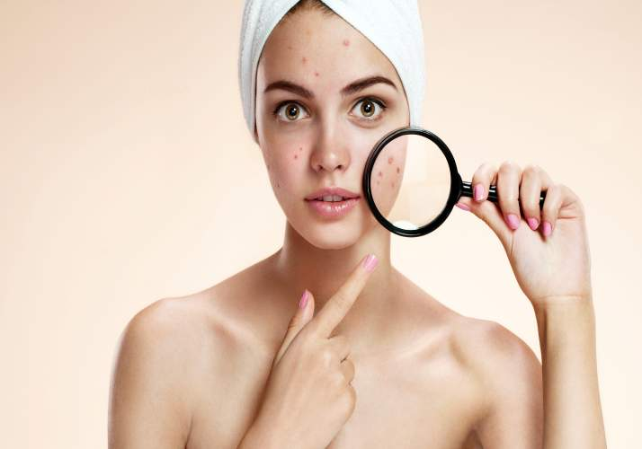 Acne Test Is Increasing Day By Day Due To Usage Of Oily Foods And Products