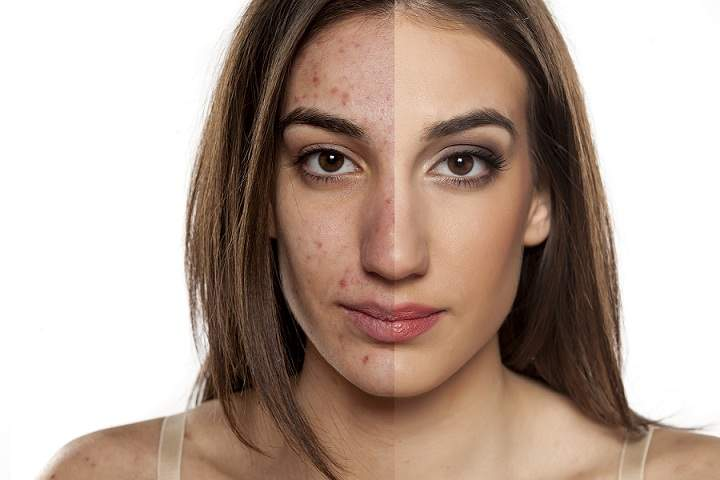 Try These Simple Cures to Get Rid of Acne & Maintain a Healthy Skin